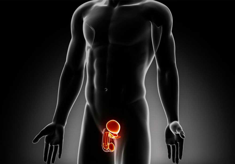 Prostatos hiperplazija - gėrybinė priešinės liaukos (prostatos) hiperplazija.