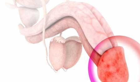 Varpos ligu požymiai, simptomai, gydymas | Homosanus