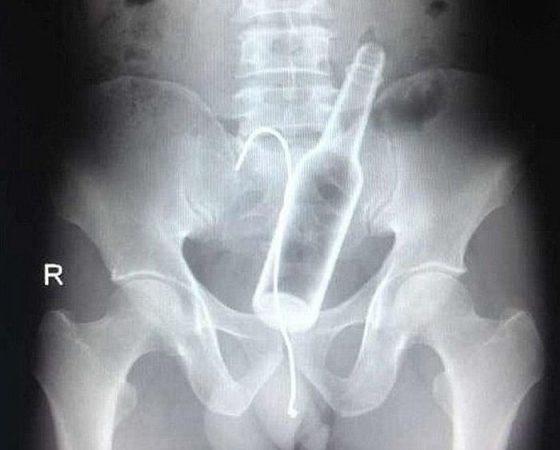 Neįprasti dalykai, kurie pernai metais buvo rasti įstrigę žmonių genitalijose